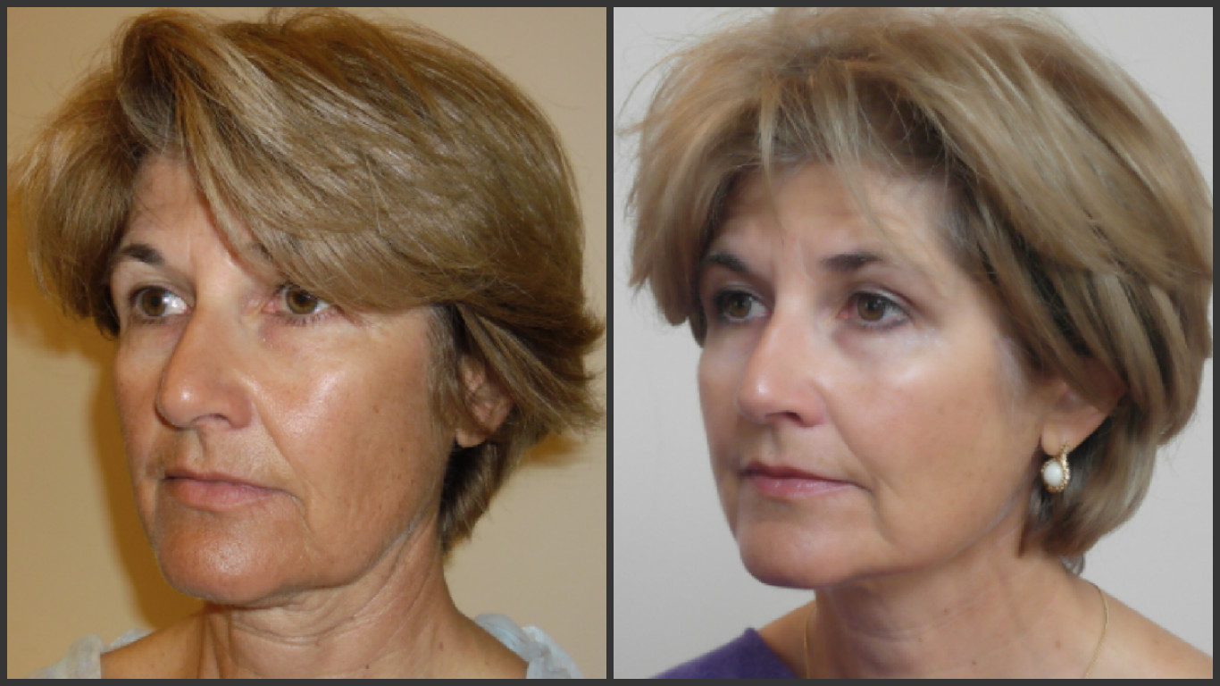 Woman before and after non-surgical facelift