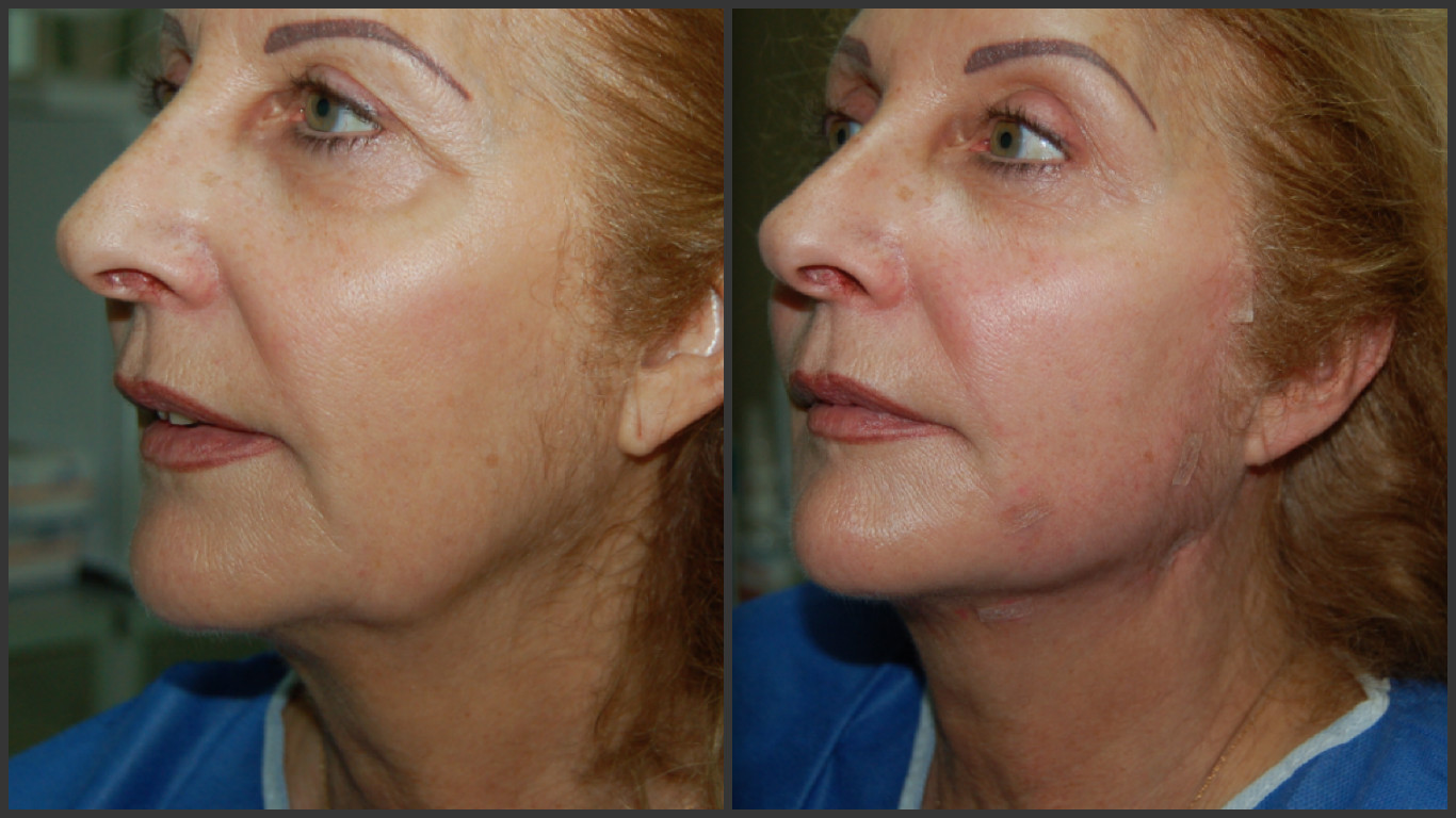 Woman before and after face thread lift