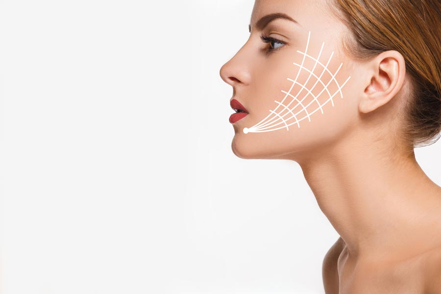 Thread Lift - Non Surgical Face Lift Treatment